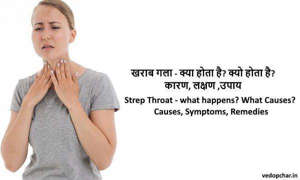 Strep Throat in hindi:खराब गला – क्या होता है?कारण,लक्षण,उपाय