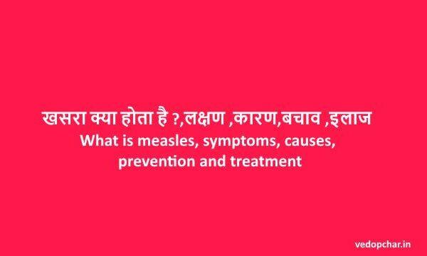 Khasara in hindi:खसरा क्या होता है,लक्षण,कारण,बचाव और इलाज