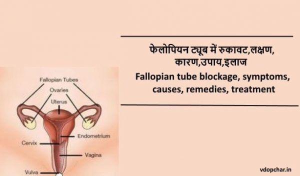 Fallopian tube blockage in hindi:फेलोपियन ट्यूब में रुकावट