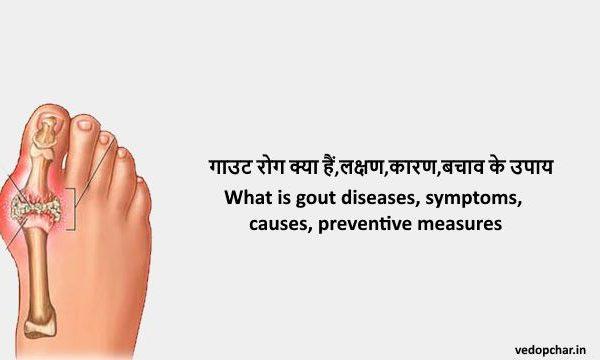 Gout disease in hindi:गाउट रोग क्या हैं,लक्षण,कारण,बचाव के उपाय