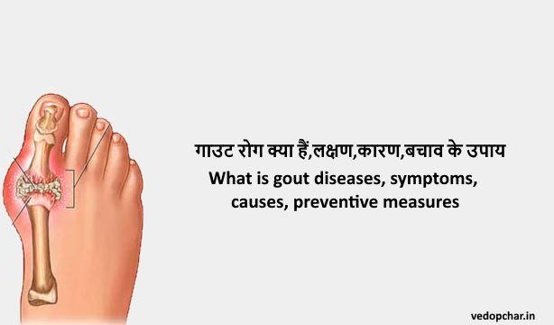 Gout disease in hindi