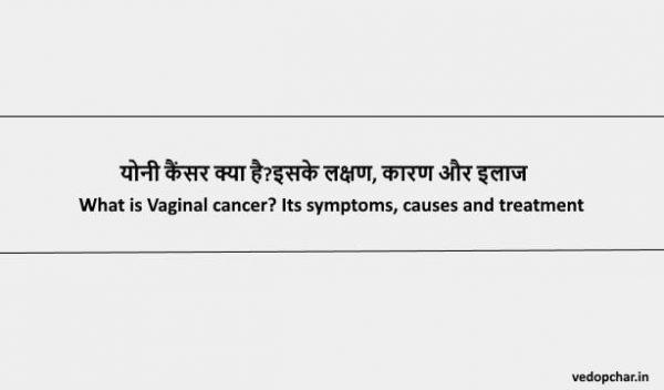 Vaginal Cancer in Hindi : योनी कैंसर क्या है?इसके लक्षण, कारण और इलाज