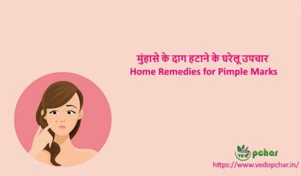 Home Remedies for Pimple Marks in Hindi : मुंहासे के दाग हटाने के घरेलू उपचार