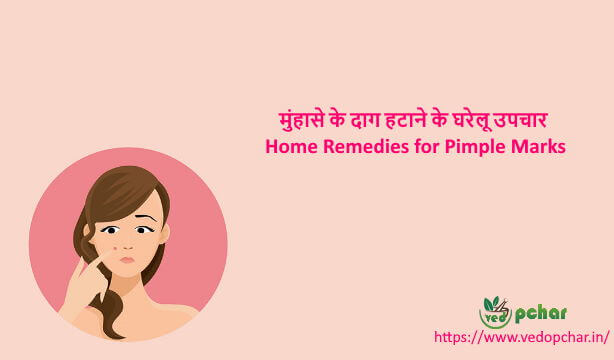 Home Remedies for Pimple Marks in Hindi