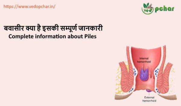 Piles in Hindi :बवासीर (Bawaseer) क्या है इसकी सम्पूर्ण जानकारी